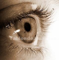 Otros: Prevenir la ceguera